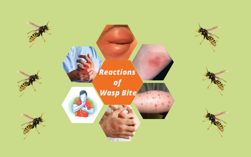 Reactions of Wasp Sting